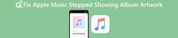 Apple Musicにアルバムアートワークが表示されない